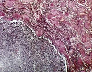 renalcellcarcinomatreatment_784656